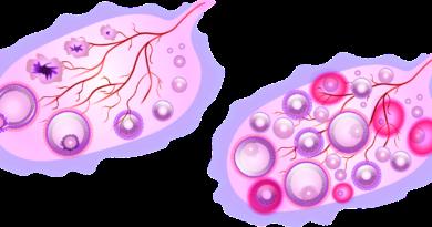Mięśniaki macicy - naturalne sposoby zapobiegania i leczenia